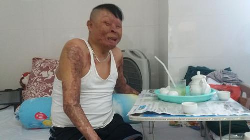 Chiến sĩ duy nhất còn sống sau vụ rơi máy bay ở Hòa Lạc sắp ra viện - 1