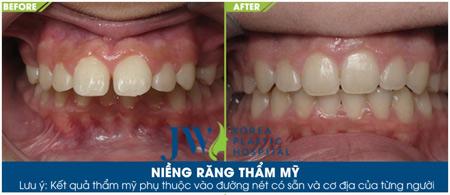 100 cơ hội làm đẹp răng miệng giá 0đ tại bệnh viện thẩm mỹ JW - 3