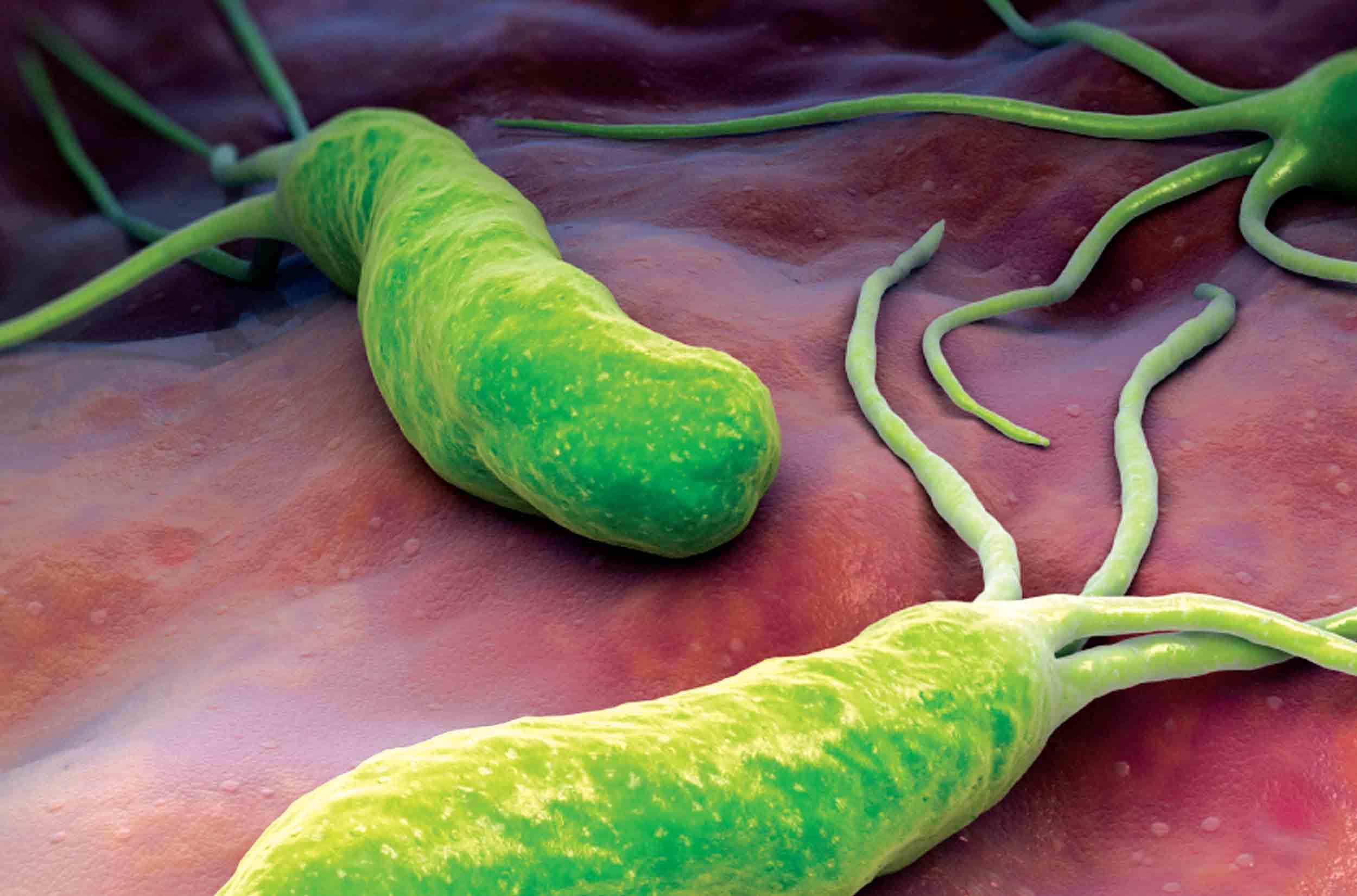 Viêm hang vị, dạ dày: Muốn tránh ung thư phải diệt vi khuẩn HP đúng cách - 2