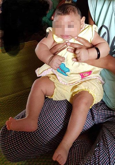 Bé gái 4 tháng tuổi ở Đắk Lắc bị dị tật do virus Zika - 1