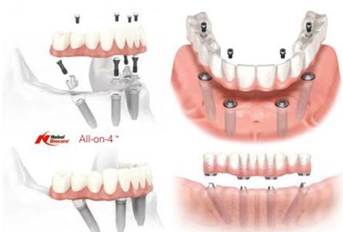"""""""All on 4""""- Bước đột phá giúp giảm một nửa chi phí trồng răng Implant - 2"""