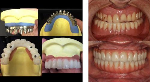 """""""All on 4""""- Bước đột phá giúp giảm một nửa chi phí trồng răng Implant - 3"""