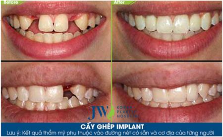 """""""All on 4""""- Bước đột phá giúp giảm một nửa chi phí trồng răng Implant - 4"""