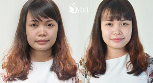 Công nghệ phủ bóng trắng da Meso Pure White chính thức về VN - 3