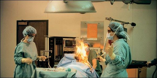 Bệnh nhân cháy nửa người vì … trung tiện trên bàn mổ - 1