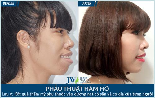 """JW hội tụ """"tứ đại mỹ nữ"""" hàm hô - 6"""