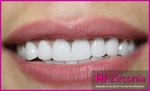 Nha Khoa Đông Nam ra mắt răng sứ cao cấp HI–Zirconia - 3