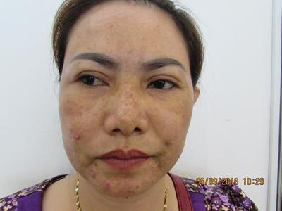 Kem trộn và những hiểm họa khôn lường cho da mặt - 3