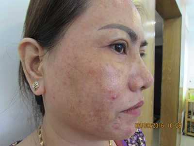 Kem trộn và những hiểm họa khôn lường cho da mặt - 4