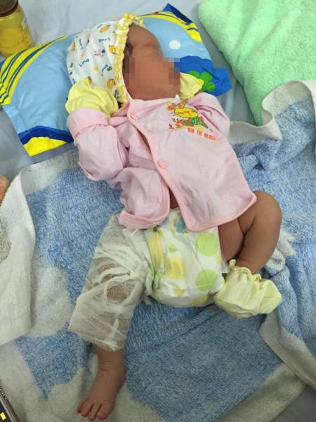 Phê bình kíp mổ khiến trẻ sơ sinh gãy 1/3 xương đùi - 1