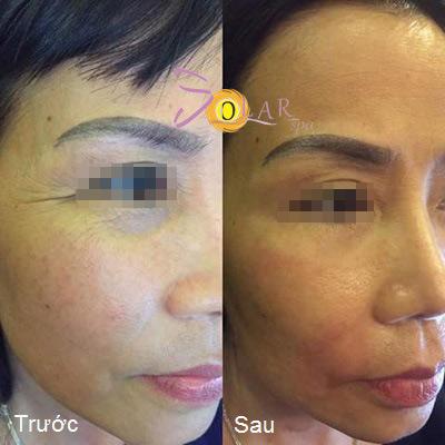 Giảm giá sốc 70% dịch vụ nâng cơ mặt, trẻ hóa da trong 90 phút - 1