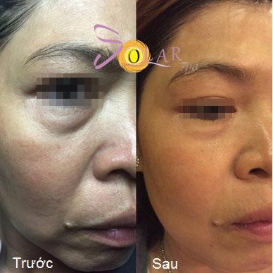 Giảm giá sốc 70% dịch vụ nâng cơ mặt, trẻ hóa da trong 90 phút - 2