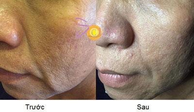 Giảm giá sốc 70% dịch vụ nâng cơ mặt, trẻ hóa da trong 90 phút - 3