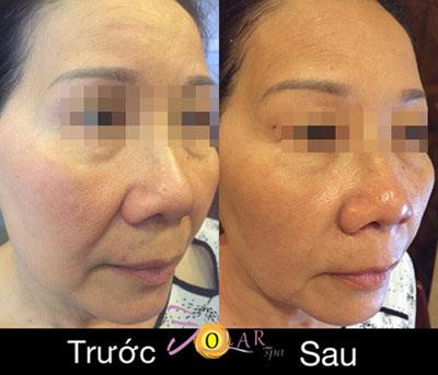 Giảm giá sốc 70% dịch vụ nâng cơ mặt, trẻ hóa da trong 90 phút - 4