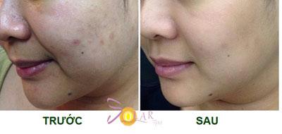 Giảm giá sốc 70% dịch vụ nâng cơ mặt, trẻ hóa da trong 90 phút - 5