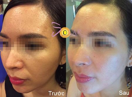 Giảm giá sốc 70% dịch vụ nâng cơ mặt, trẻ hóa da trong 90 phút - 6