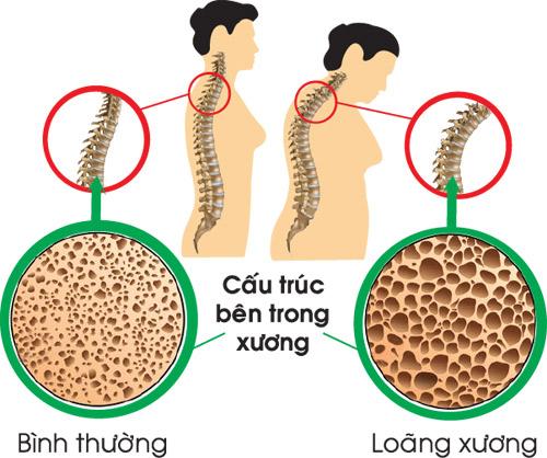 Loãng xương – Nên phòng bệnh trước khi quá muộn - 1