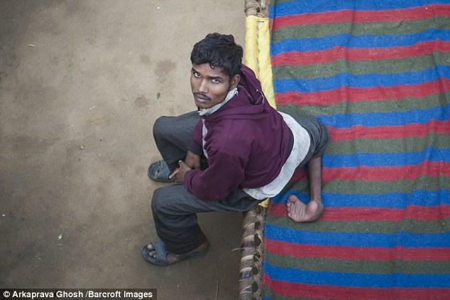 Chàng trai có 4 chân ở Ấn Độ - 1