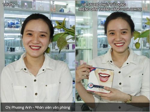 Tiết lộ bí quyết thành công nhờ vào nụ cười trắng sáng - 4