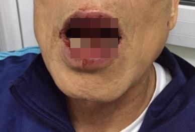 Đi tập thể dục, một tiến sĩ bị đánh nhập viện - 1