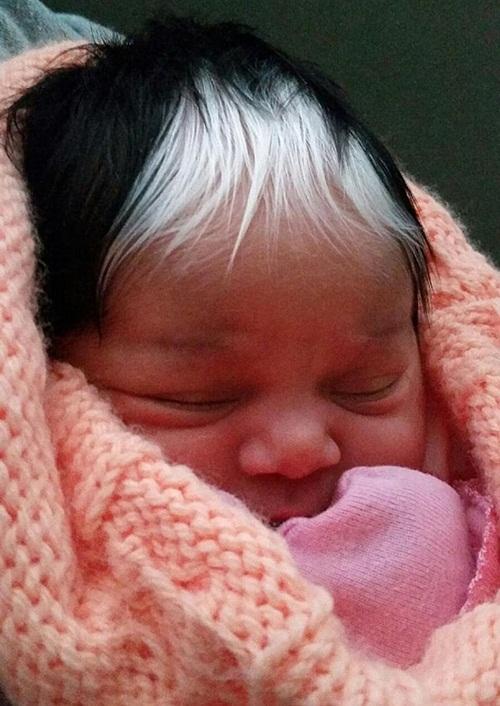 Kỳ lạ cô bé sinh ra với hai màu tóc và hai màu da - 1