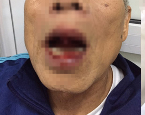 Vụ tiến sĩ bị đánh: Chủ tịch HN đề nghị xử lý nghiêm - 1