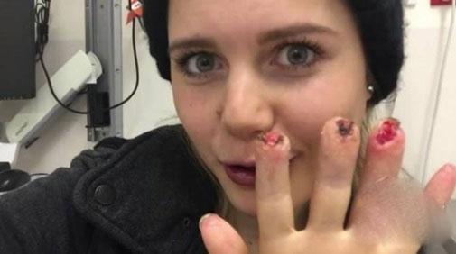 Cô gái nhận cái kết rùng rợn vì dùng quá nhiều thuốc - 4