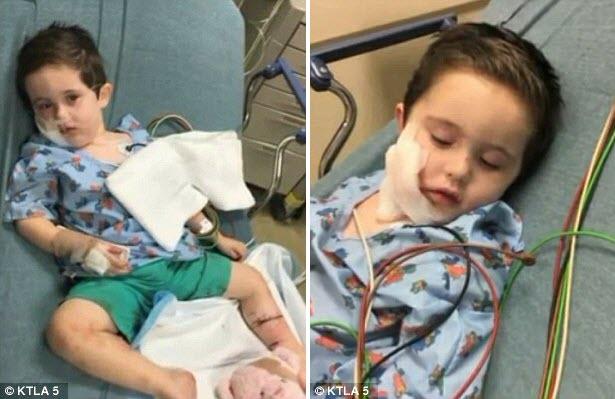 Mỹ: Con bị cặp chó dữ tấn công ác liệt, mẹ xả thân bảo vệ - 2