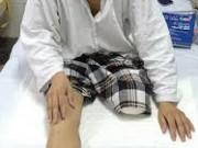 """Tin tức trong ngày - Nhân viên y tế tự cắt lìa chân mắc """"quái bệnh"""""""