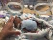 Cứu sống em bé sinh non nặng 0,45 kg