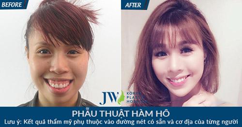 Làm đẹp không mất phí cùng chuyên gia Hàn Quốc tại JW - 3
