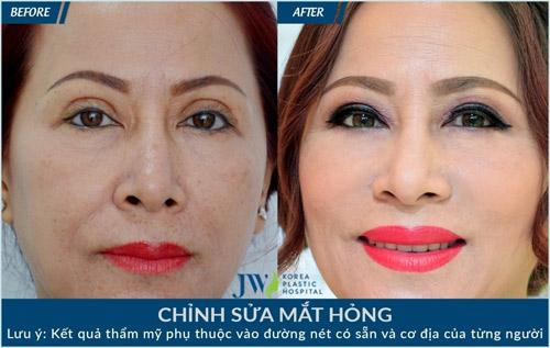 Làm đẹp không mất phí cùng chuyên gia Hàn Quốc tại JW - 6