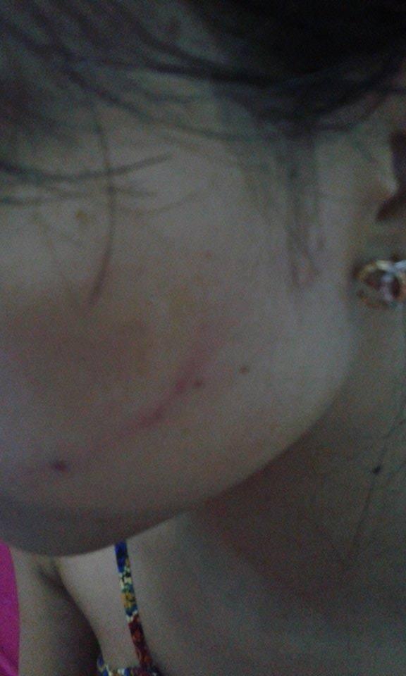 """Cô gái tố tài xế ô tô tát sưng mặt vì """"không nhường đường"""" - 1"""