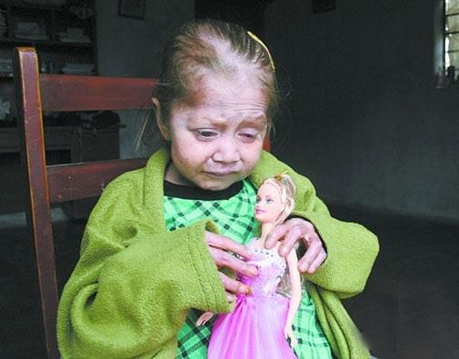 Xót xa cuộc sống của bé gái 7 tuổi hóa bà lão 80 - 1