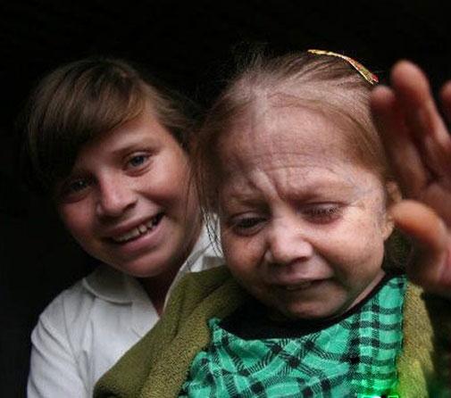 Xót xa cuộc sống của bé gái 7 tuổi hóa bà lão 80 - 2