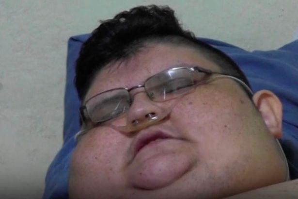Chàng béo 500kg bắt đầu ăn kiêng để tự cứu mình - 2
