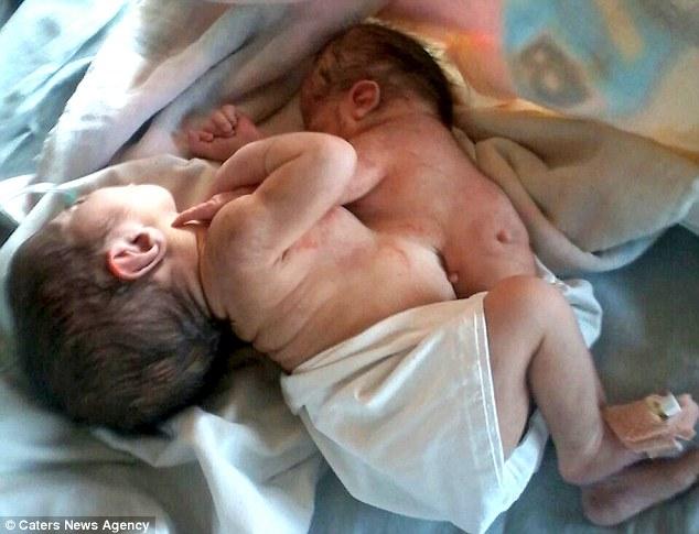 Cặp song sinh ký sinh chào đời ở Ấn Độ - 1