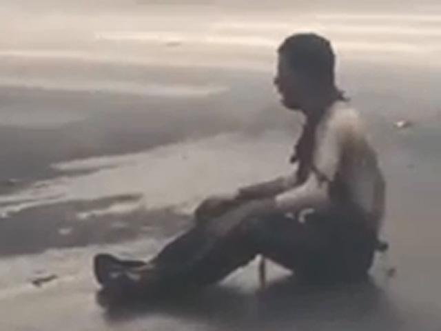 Vụ nổ bốt điện: Người đàn ông ngồi xe lăn bị cháy xém - 1