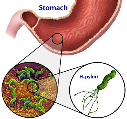 Lợi và hại khi sử dụng kháng sinh trong điều trị viêm hang vị, dạ dày - 2