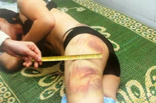 """Phụ nữ bị đánh đập: Giữ """"hình ảnh""""để làm gì? - 1"""