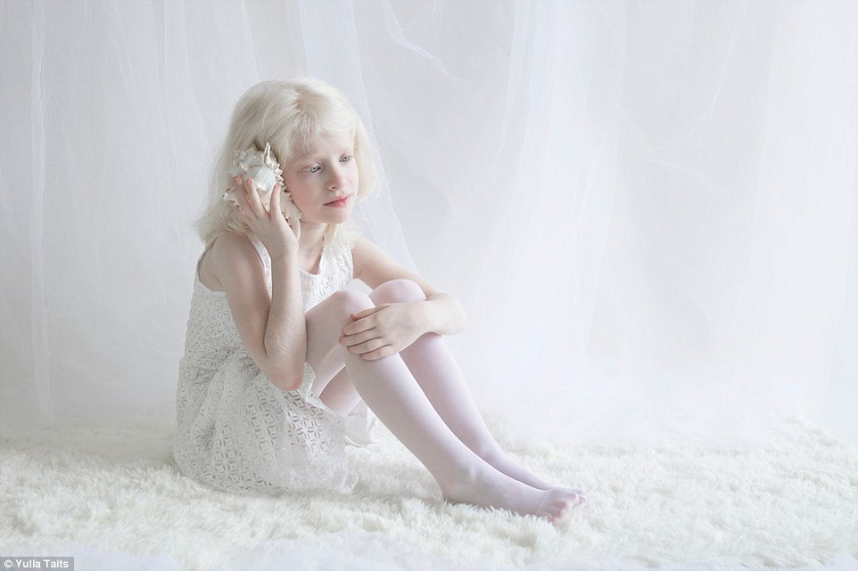 Vẻ đẹp tinh khiết khác lạ của những người Nga bạch tạng - 1