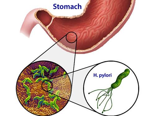 Cách diệt HP hiệu quả trong viêm trợt, loét hang vị, dạ dày - 3
