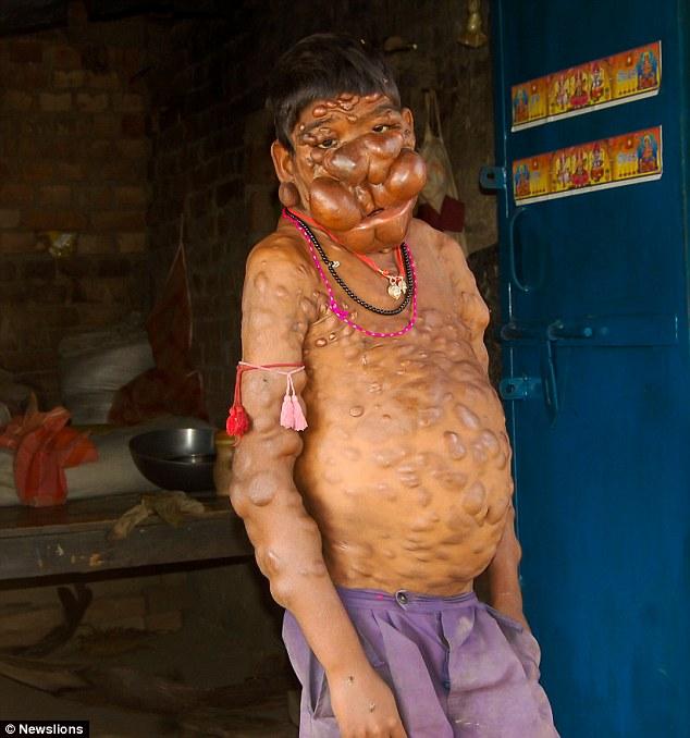 """Cậu bé có khuôn mặt """"ác quỷ"""" ở Ấn Độ - 3"""