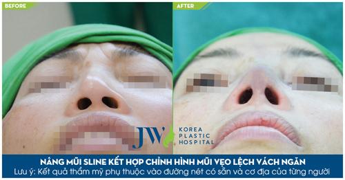 Tâm sự đắng lòng của những phụ nữ phẫu thuật thẩm mỹ hỏng - 5