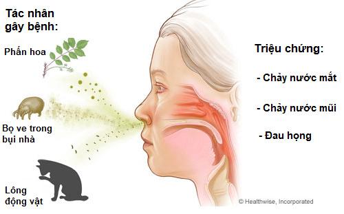 Thuốc hay cho người viêm mũi dị ứng - 1
