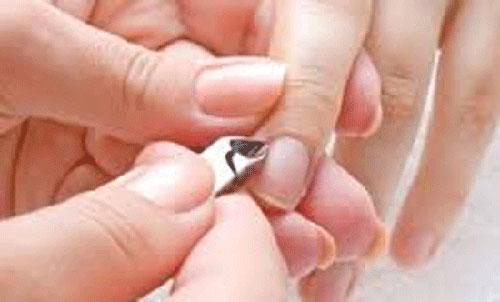 Bé gái 7 tuổi phải nhập viện vì thói quen cắn xước măng-rô ngón tay - 4