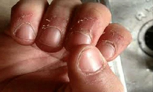 Bé gái 7 tuổi phải nhập viện vì thói quen cắn xước măng-rô ngón tay - 5