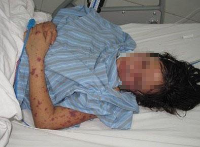 Bệnh viêm não mô cầu cực nguy hiểm lại xuất hiện ở Hà Nội - 1