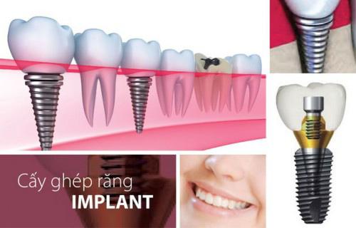 """""""Implant tức thì"""" – phục hồi răng mất sau 48 giờ - 2"""