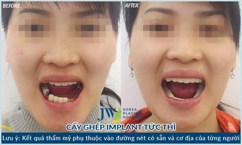 """""""Implant tức thì"""" – phục hồi răng mất sau 48 giờ - 4"""